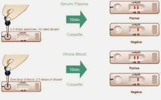 Анализ крови на вич и гепатит