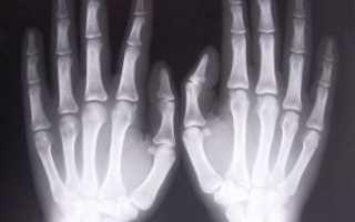 Показания к рентгену руки и особенности выполнения процедуры