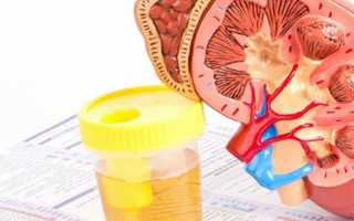 Повлияют ли антибиотики на анализ крови и мочи
