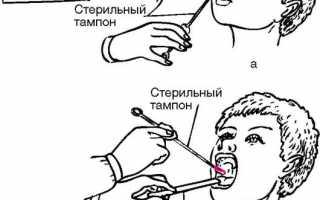 Как подготовиться к взятию мазка из горла