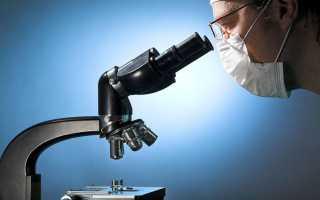 Мазок из влагалища может показать вич инфекцию