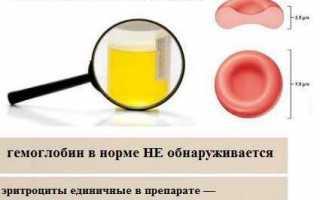 Бактериологический анализ мочи