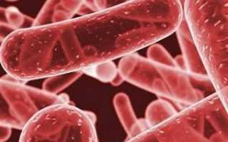 Клебсиелла пневмония в моче: характеристики, причины появления, симптомы, диагностика, лечение