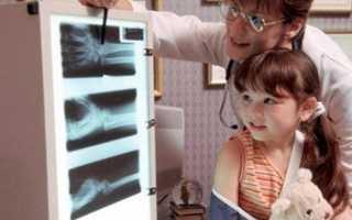 Чем вреден рентген