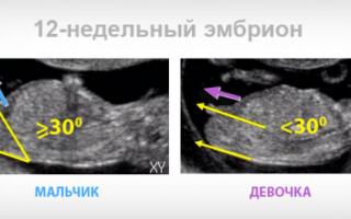 Зачем делают узи органов брюшной полости?