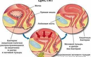 Чем опасно наличие почечного эпителия в моче?