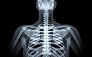 Рентген шейного грудного отдела позвоночника
