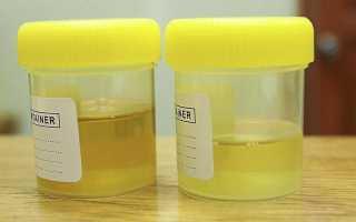 Доктор комаровский об инфекциях мочевыводящих путей