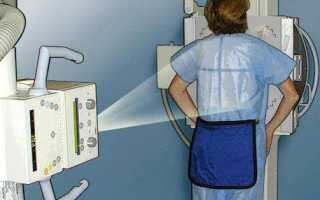 Как часто можно делать рентген?