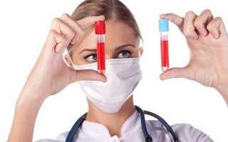 Уровень триглицеридов в крови, от чего зависят изменения и методы стабилизации показателя