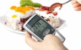 Биохимия мочи: глюкоза