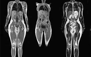 Для чего нужно сделать компьютерную томографию, виды и особенности процедуры
