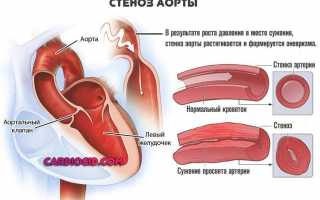 Что это такое уплотнение аорты