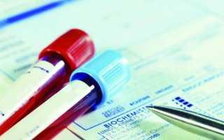 P lcr в анализе крови что это такое