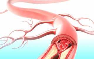 Как делается плазмаферез, какие заболевания лечит и почему его применяют при беременности