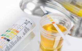 Когда начинает вырабатываться гормон хгч в моче?