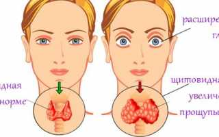 Mch в анализе крови: что это, нормы среднего содержания гемоглобина в эритроците, причины повышения и понижения