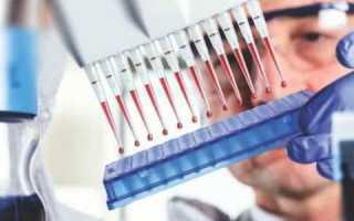 В каких случаях повышается содержание эритроцитов в моче