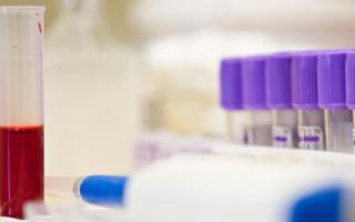 Анализ крови клинический и биохимический разница