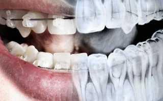 Панорамный снимок зубов — ортопантомограмма