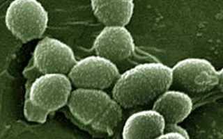 Enterococcus faecalis (энтерококк фекальный) в мазке у женщин