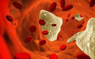 Норма тромбоцитов у детей по возрасту