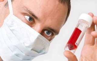 Что за анализ крови ири