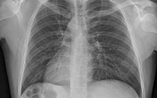 Рентген легких. рентгенологические синдромы при заболеваниях легких. рентгенодиагностика воспалительных и опухолевых заболеваний легких