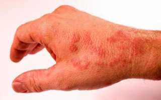 Пеленочный дерматит (потничка) у новорожденных детей и грудничков