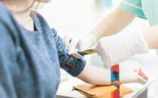 Как подготовиться к сдаче крови на анализ сахара и о чем могут сказать результаты исследования