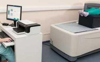 Денситометрия: расшифровка результата, показания к проведению процедуры
